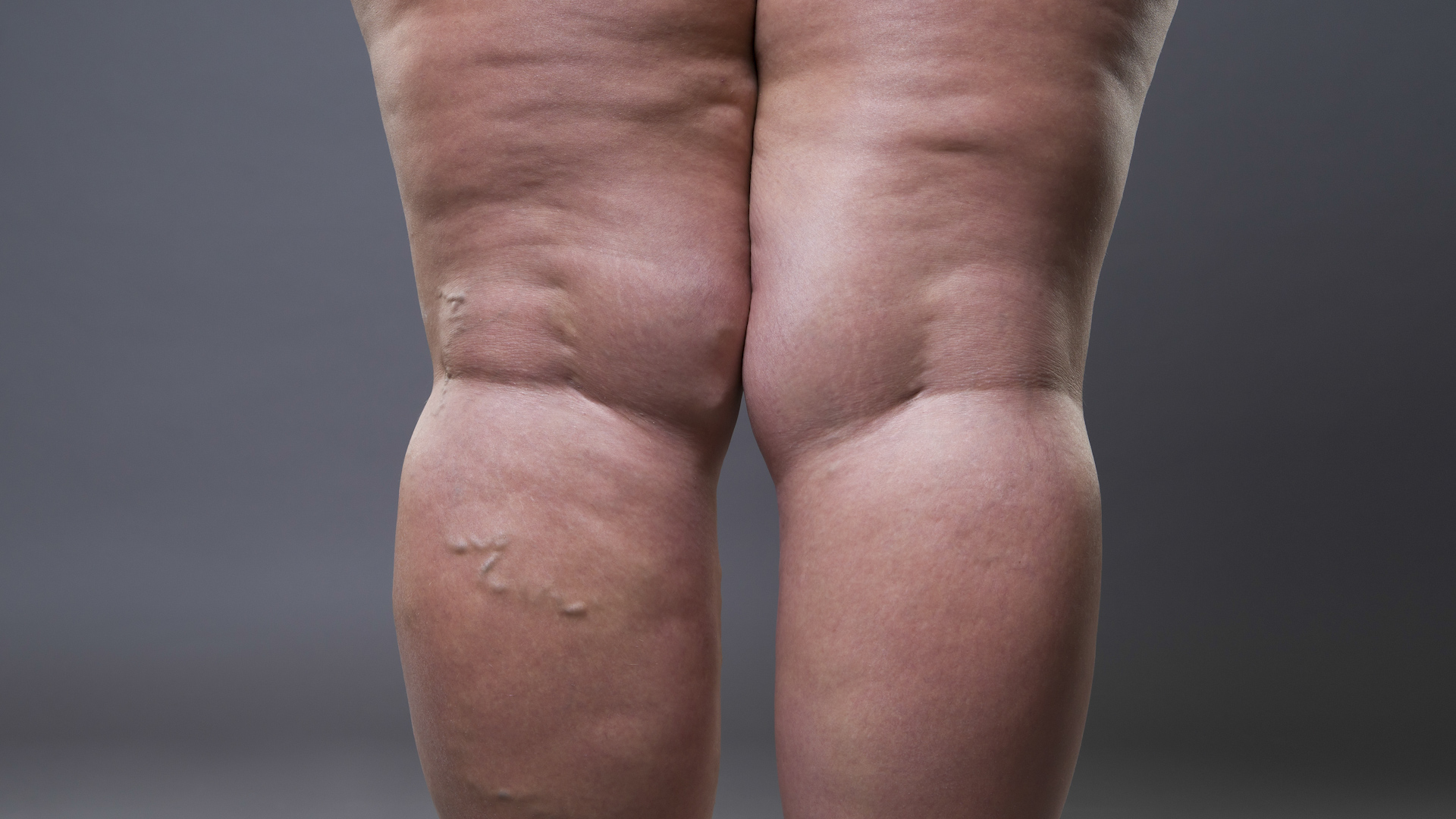 Grube nogi mogą być objawem choroby