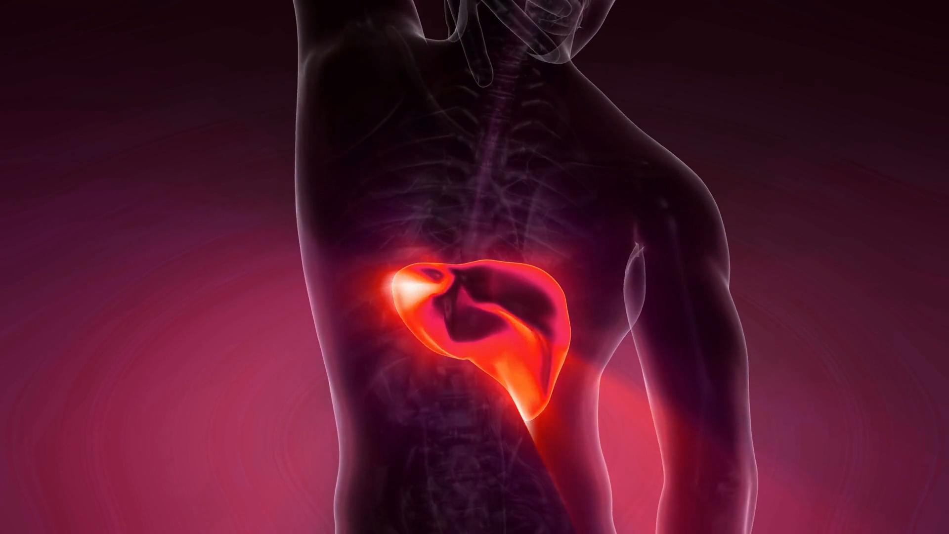 Problemy z wątrobą to nie tylko alkohol. 3 najczęstsze choroby wątroby