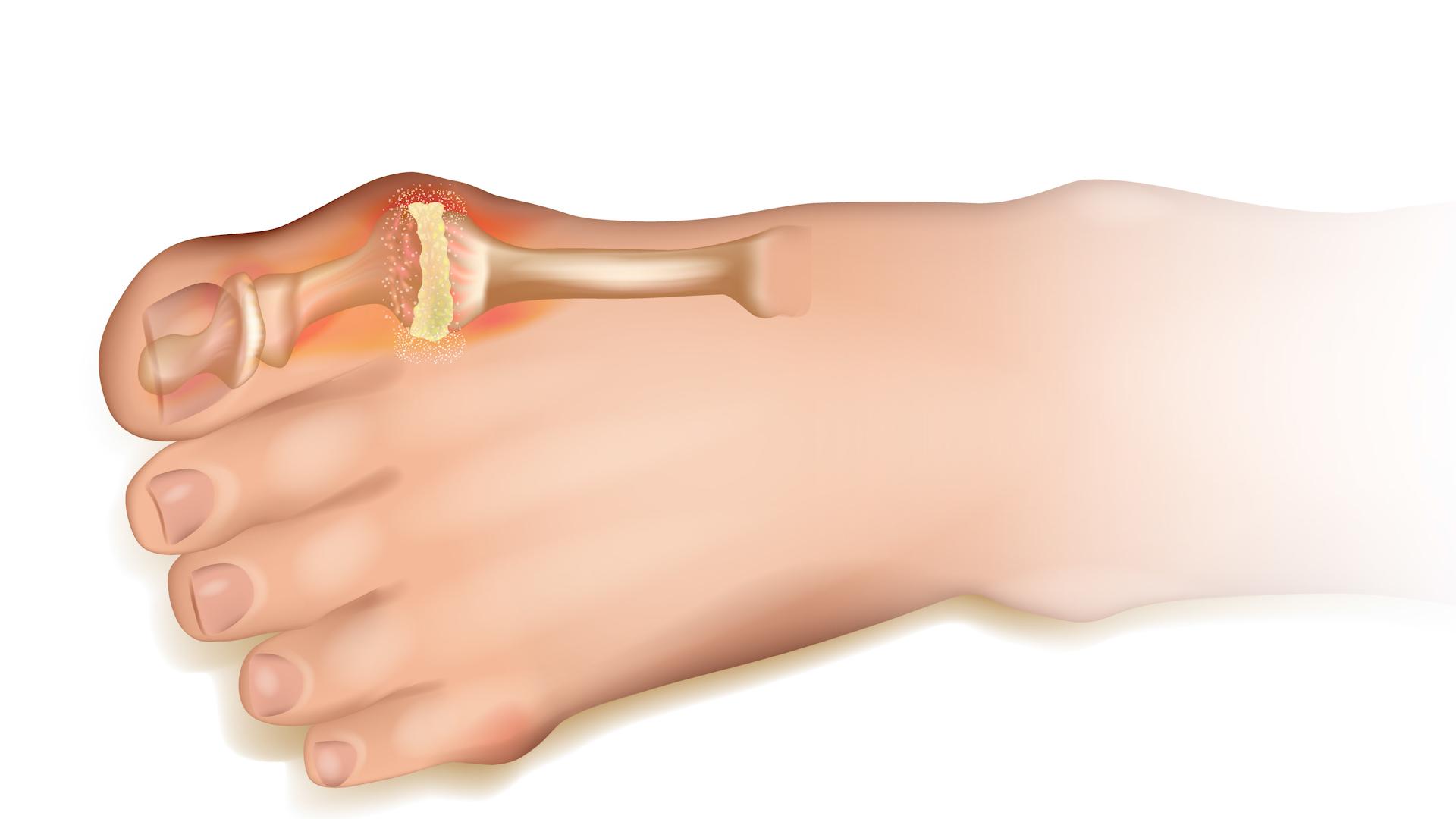 Мазь для лечения связок кисти руки